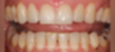 braces-after2.png