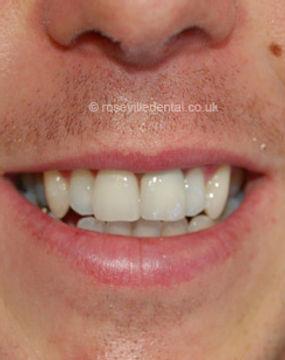 Smile-Restoration-face.jpg