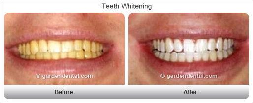 teethwhitening-bf-af1.jpg