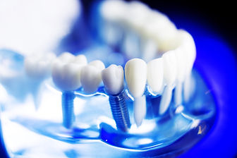 Dental Implants in High Wycombe