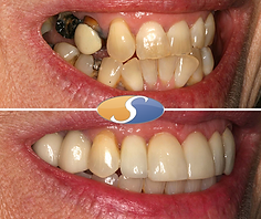 Fixed braces to align teeth & open space