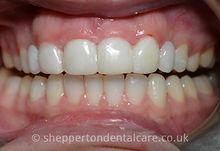 Orthodontics & Composite Bonding