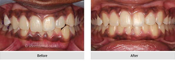 before-after-ortho3.jpg