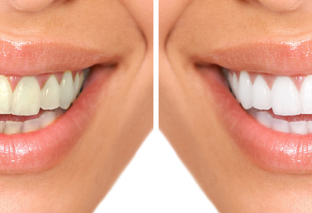 Teeth whitening – why bother?