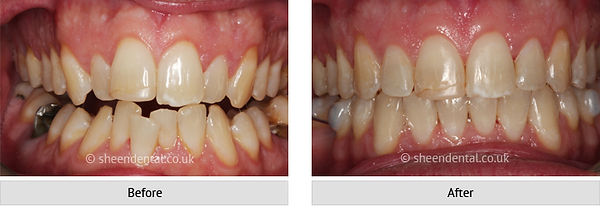 before-after-ortho68.jpg