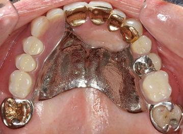prosthodontics-img-7.jpg