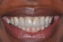 smile-design-a.jpg
