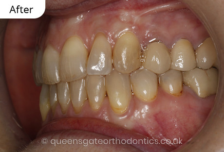Case report 4: Invisalign comprehensive – correction of crowding and posterior crossbite