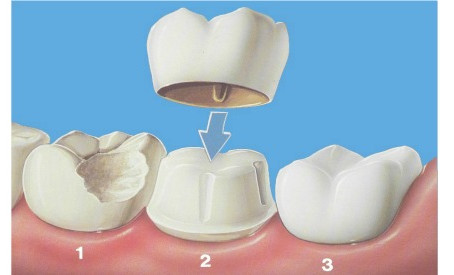 Caring For Teeth With Crowns