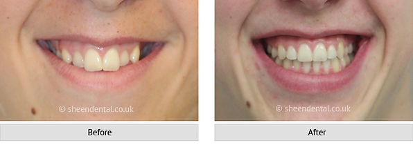 before-after-ortho12