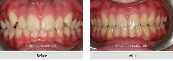 before-after-ortho25