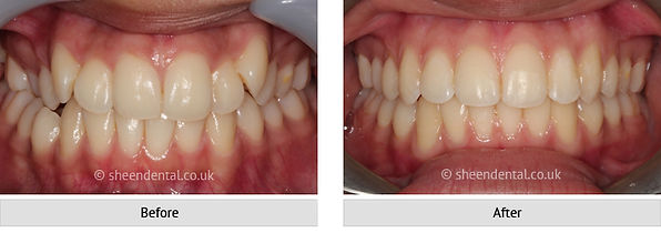 before-after-ortho50