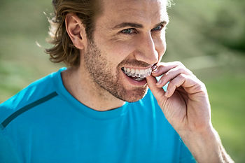 Invisalign Patient Experience