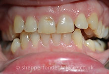 Orthodontics & Composite Bonding