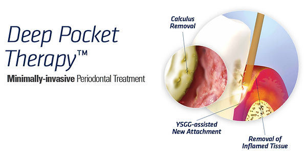 Deep Pocket Therapy