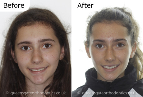 Case report 2: Invisalign teen - correction of prominent teeth