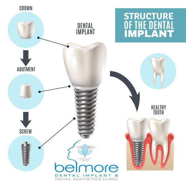 implant-step-by-step-2.jpg