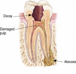 rootcanaltooth1.png