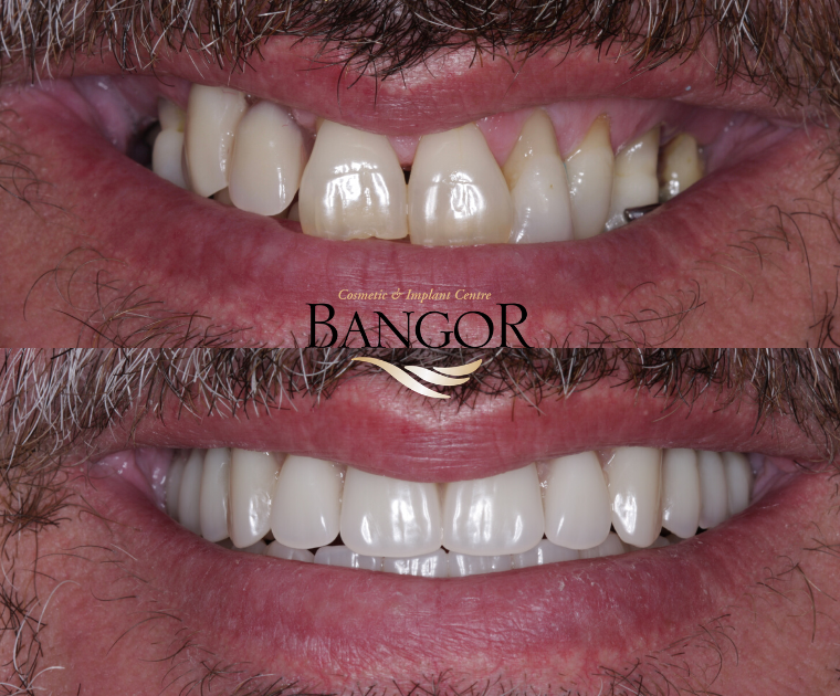 Bangor Dental Implants