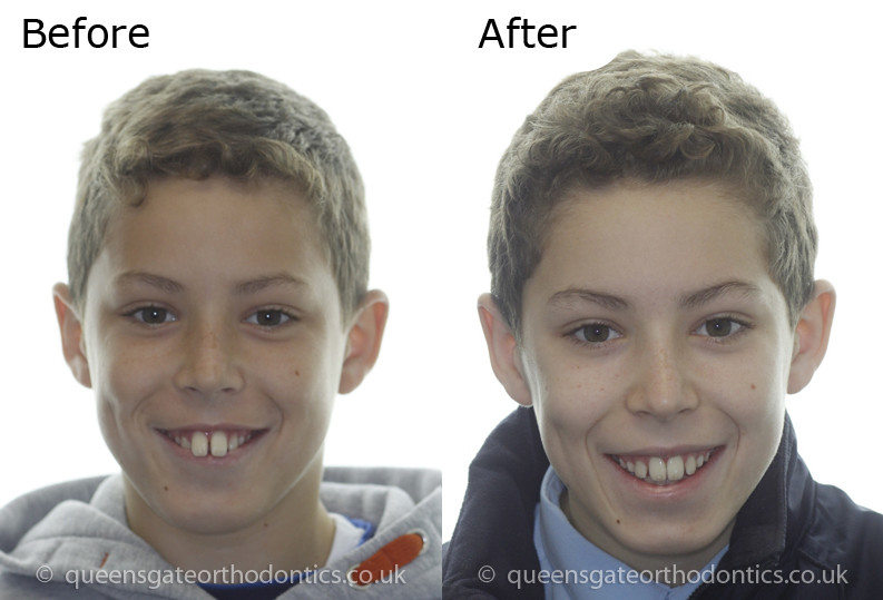Interceptive orthodontic treatment using a Myobrace