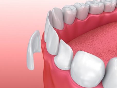 What can veneers do for me?