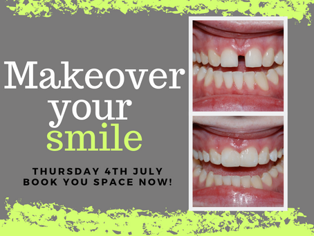 Makeover Your Smile with Composite Veneers…