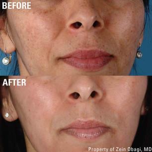 ZO beforeafter pigmentation.jpg