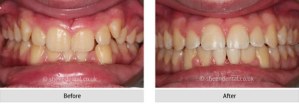 before-after-ortho6