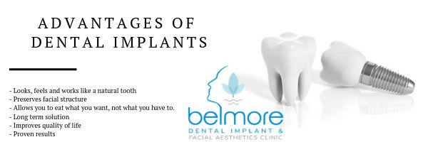 implant-step-by-step.jpg