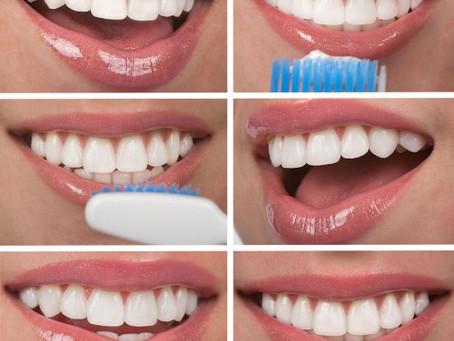 Smile consultation and makeover at Fresh Dental