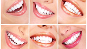 Get your summer smile with custom tooth whitening at Fresh Dental