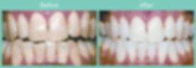 teeth-whitening-ba1.jpg