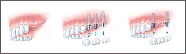 implant4.jpg