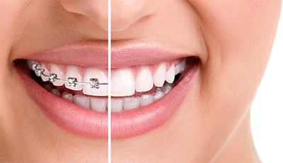 Conventional Fixed Braces