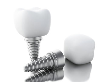 Single Dental Implants inBirmingham