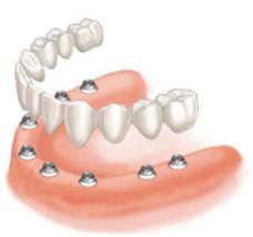 Fixed implant bridge diagram
