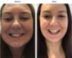 teeth-whitening-1.jpg