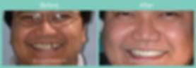 implant-ba1.jpg
