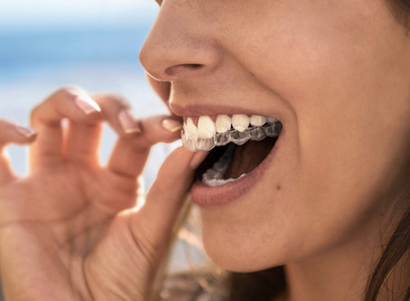 Straighten out that smile with Invisalign in Hastings