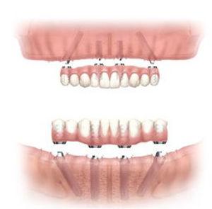 all-on-4-implants_1.jpg