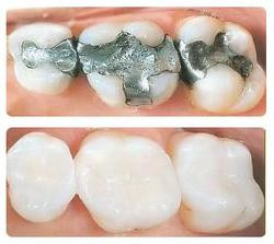 Is there a future for silver fillings?