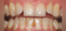 braces-before2.png