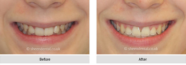 before-after-ortho64.jpg
