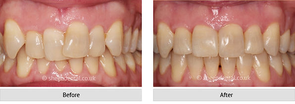 before-after-ortho73.jpg