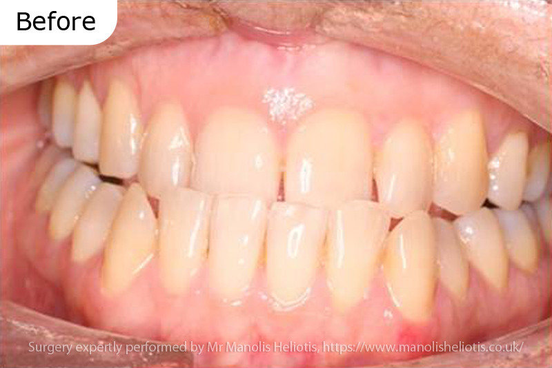 Case report 6: Short upper jaw leading to a traumatic crossbite and worn upper incisor teeth