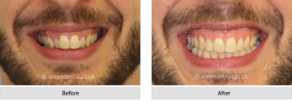 before-after-ortho65.jpg