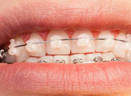 Are cFast braces for me? Frequently Asked Questions…