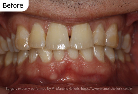 Case report 2: Short lower jaw leading to obstructive sleep apnoea