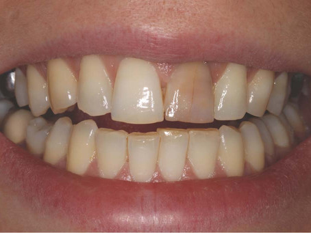 Tooth Discoloration: Causes and Treatments
