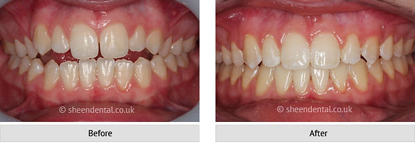 before-after-ortho36